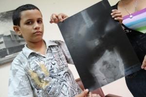 Juan Romero, el niño al que le salio en la imagen la figura de Jose Gregorio Hernández.